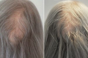 Judy - Back of head - Before and after 8 months