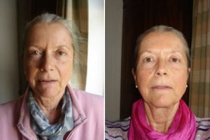 Judy - Face - Before and after 2 months