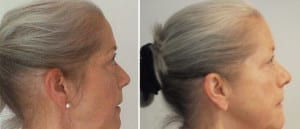 Judy - Side of head - Before and after 8 months