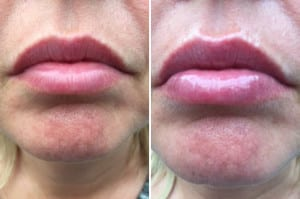 Lip gloss - Before and after